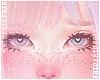 F. ADD+ Freckles