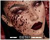 Blood T1