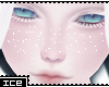 Ice * Albinos Freckless