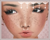 *C* Freckles