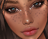 S. Universal Freckles