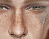 T-FrecklesNaturall