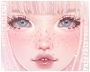 F. ADD+ Freckles 3