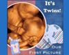 Ultrasound Twins