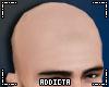 *A* Bald Guy