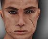 Jon scars head 1