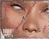 Bruise w. Stitches #2