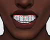 Vvs Diamond Grillz